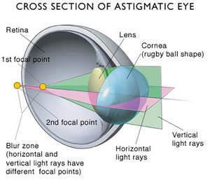 Apa itu Astigmatisme? bukaan mata yang