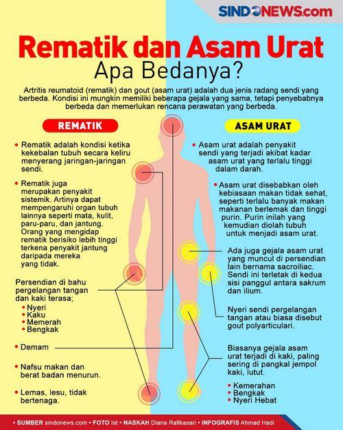 Gejala Artritis Reumatoid - Apakah Anda Mengidap Radang Sendi? antara tulang dan tulang rawan