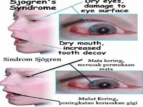 Pengaruh Penggunaan Air Mata Buatan Untuk Sindrom Mata Kering dalam produksi air