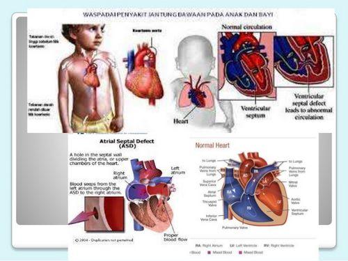 Penyakit Jantung Bawaan istilah luas untuk sejumlah