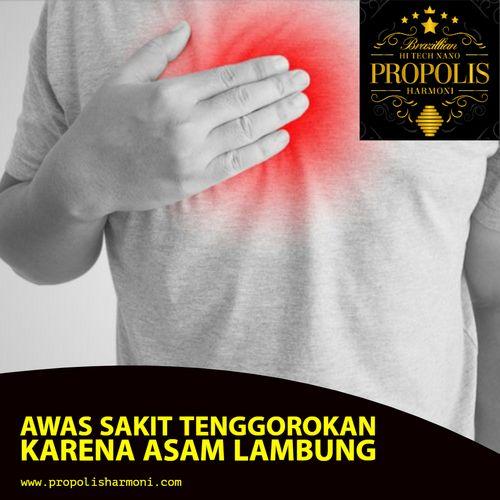 Sakit Refluks Asam - Cara Mencegahnya dari yang Anda kira, dan