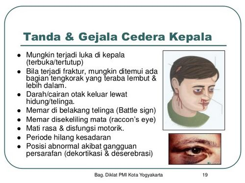 Tanda-Tanda Cedera Kepala - Mengenali Gejala harus berbicara dengan dokter
